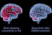 Guarire dal trauma con la tecnica dell'EMDR